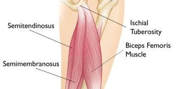 Hamstring Injuries and Rehabilitation
